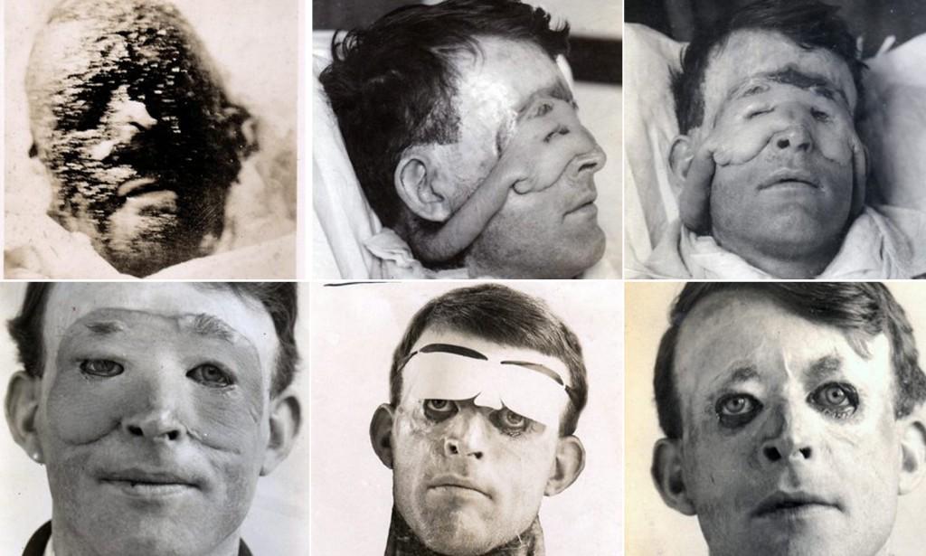 بدأت عمليت التجميل عبر التاريخ من محاولة اصلاح الجروح التي خلفتها الحروب